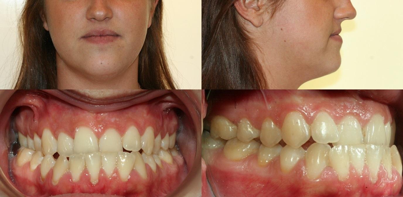 Cas 2 - orthodontie acceleree - corticotomies - prognathie.jpg