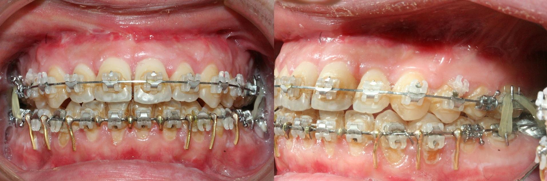 Cas 2 - traitement orthodontie rapide - corticotomies - prognathie -3.jpg