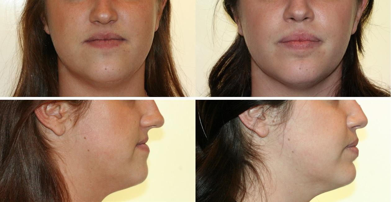 Photos patiente traitèe en orthodontie rapide avant et après le traitement