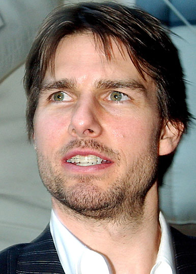 tom Cruise Braces.jpg