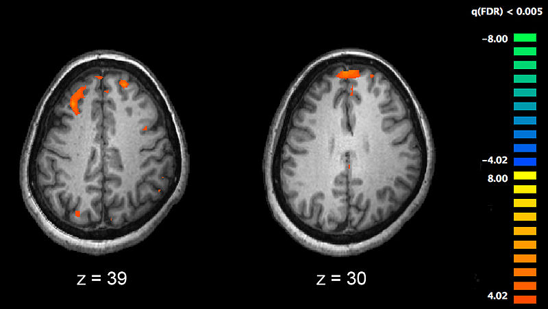 fMRI.jpg