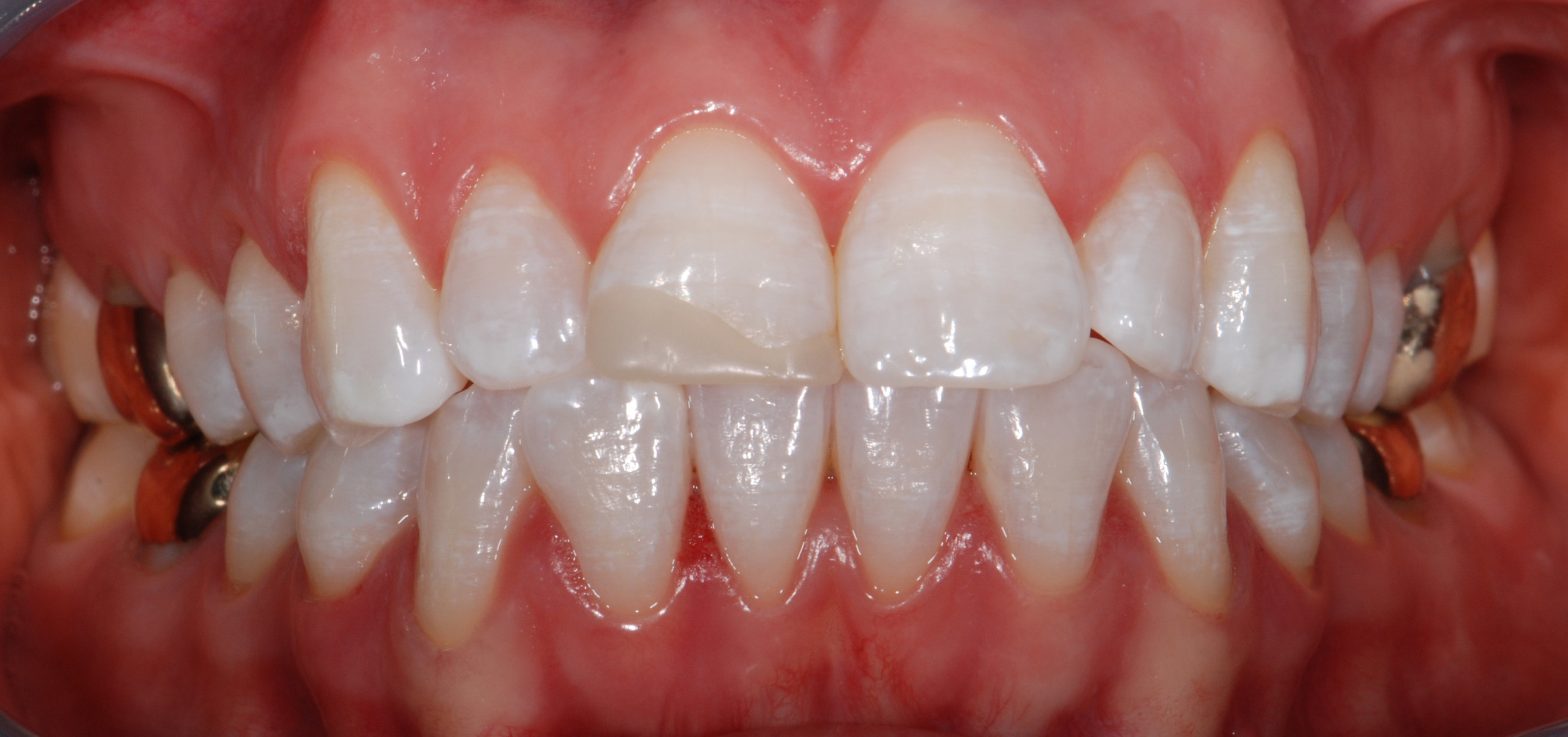 Post-Whitening - 4. Centric Occlusion.jpg