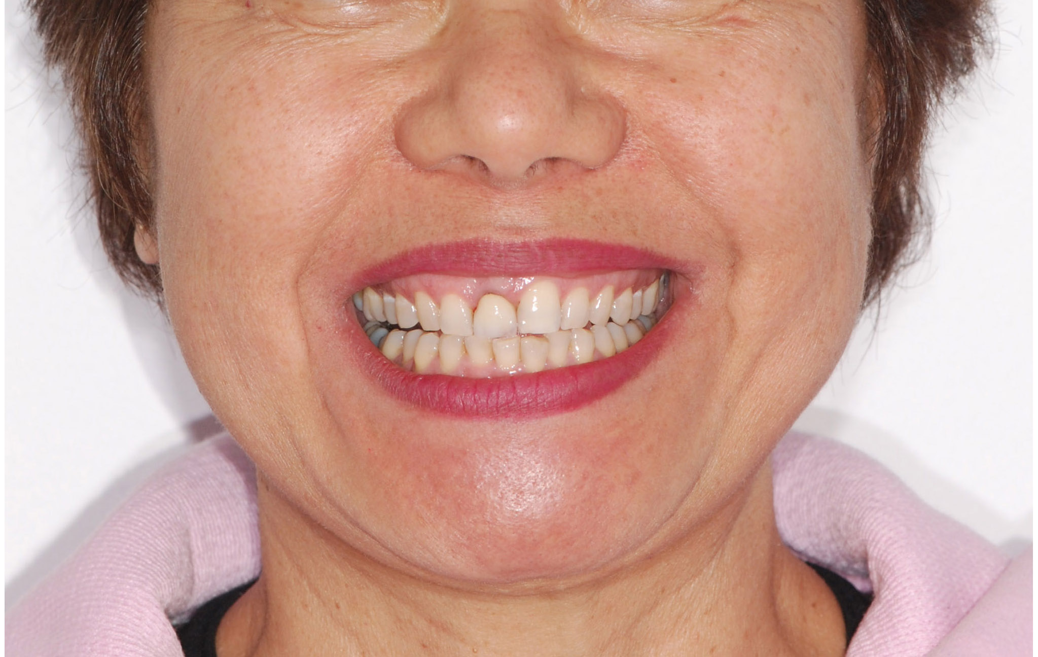 Smile with failing tooth