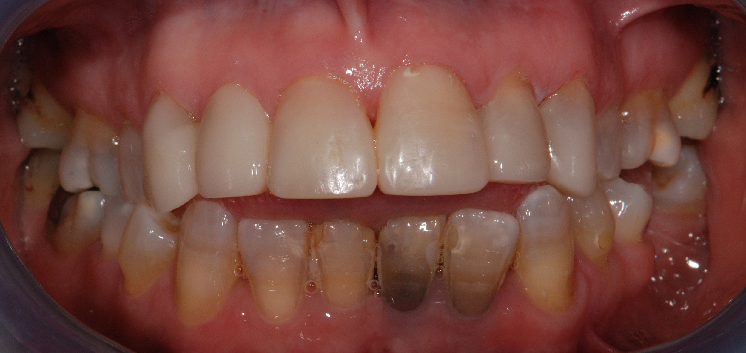 Teeth after Makeover