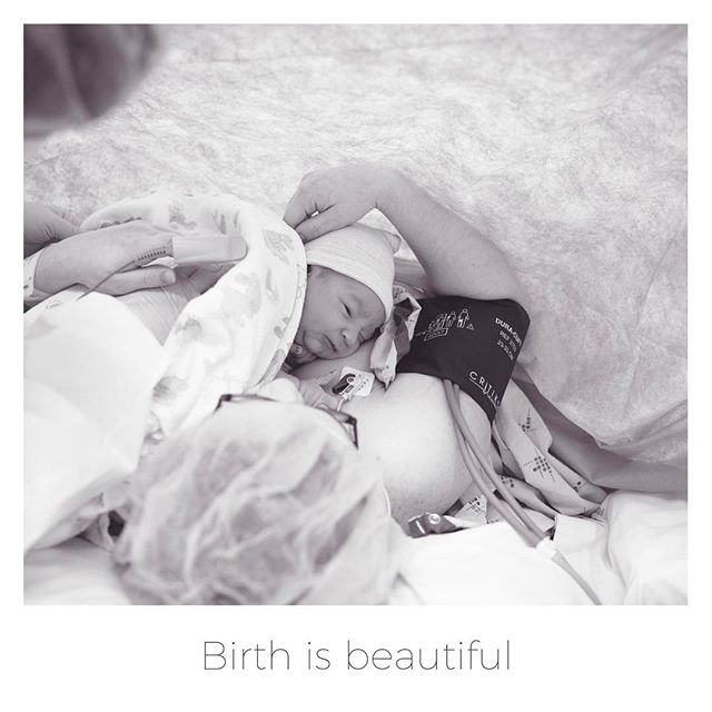 No matter how your baby comes into the world birth is beautiful! #birthsupport #donadoula #birthphotography
