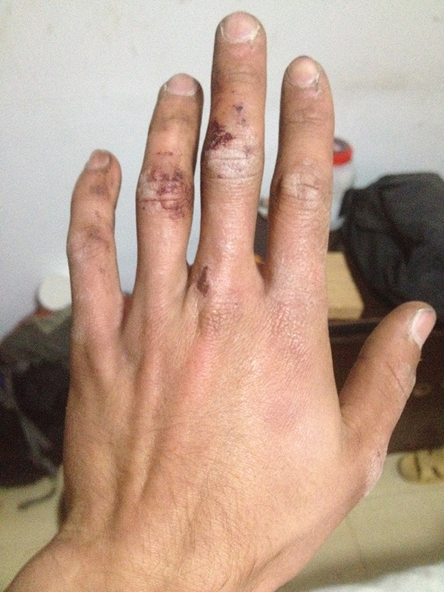 Ryder's hands. An example why controlled movement and good technique are key in Liming. The sandstone destroys everything...