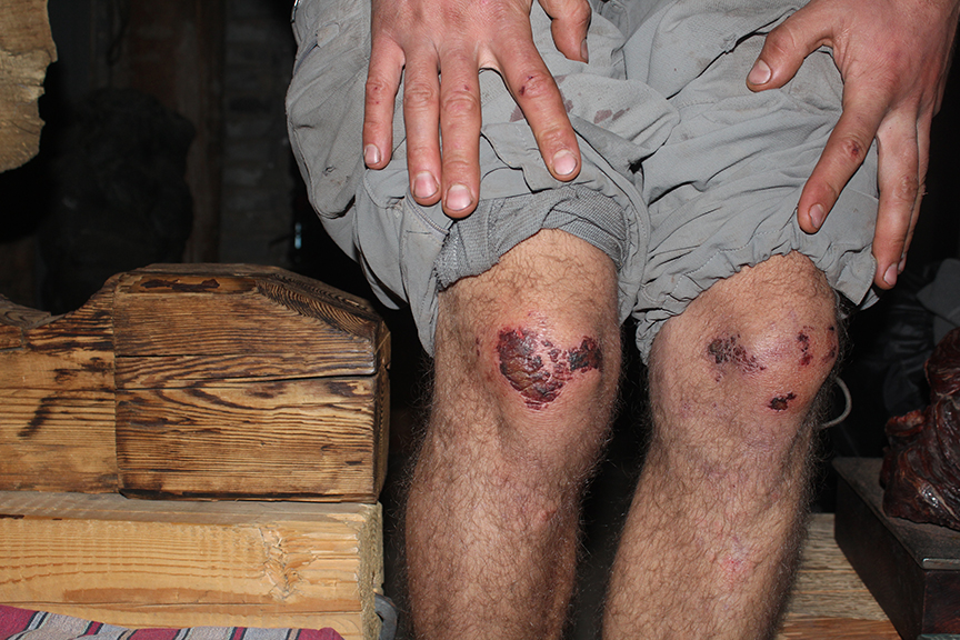 A victim of overamping with kneebars in an offwidth, Nico's knees took a beating on-route.
