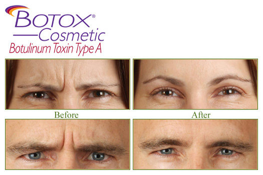botox-before-and-after1.jpg