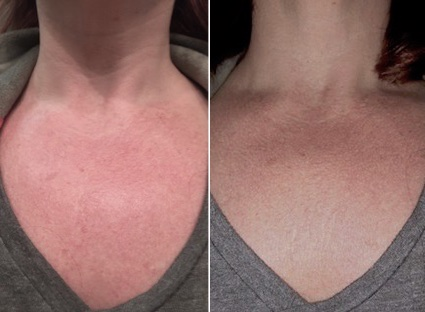Four weeks after one IPL treatment