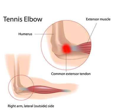tennis_elbow.png