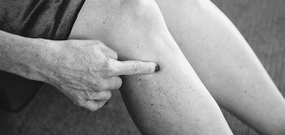 Gall bladder 34_acupressure_pain_relief