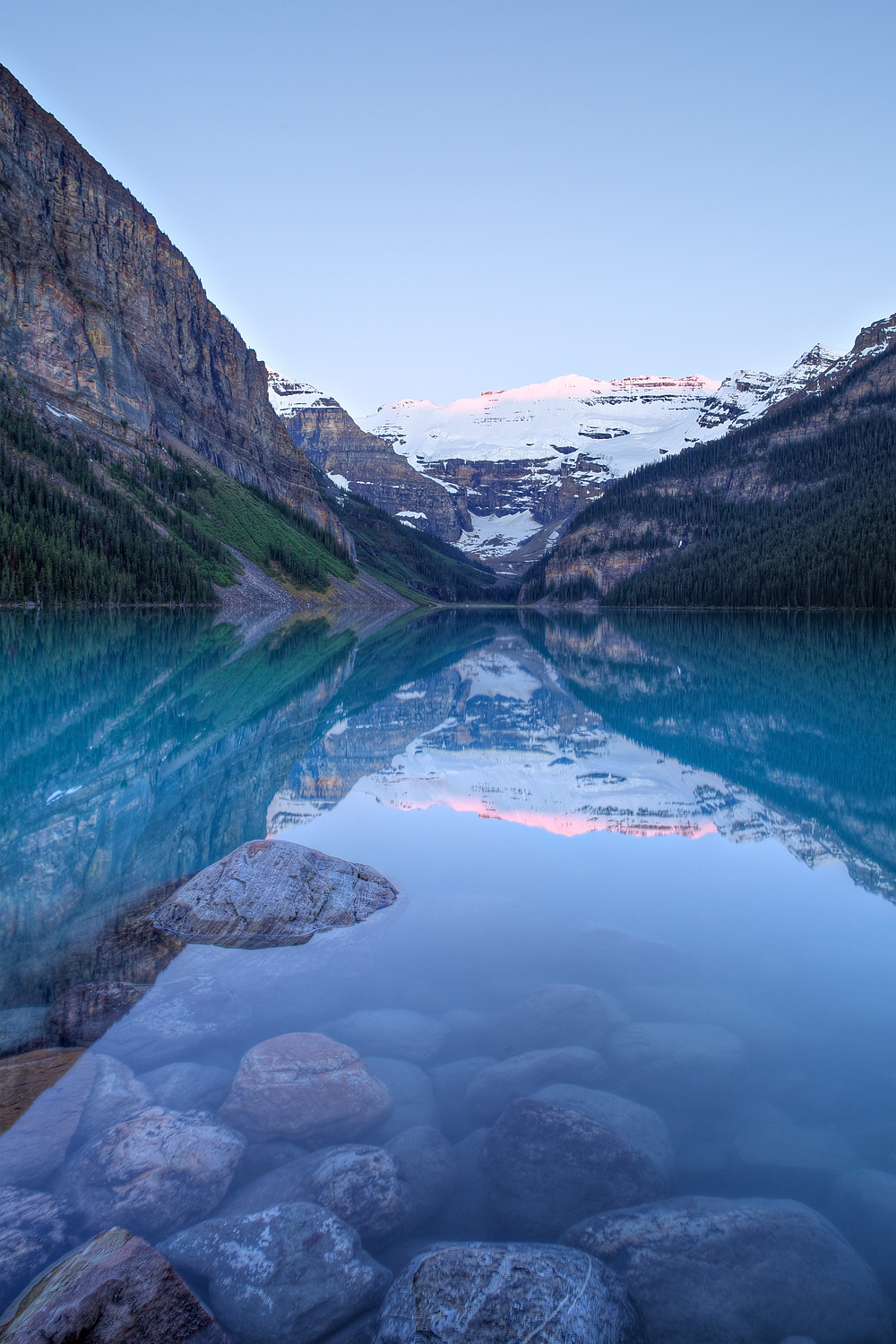 LakeLouise_b_MG_2390.jpg