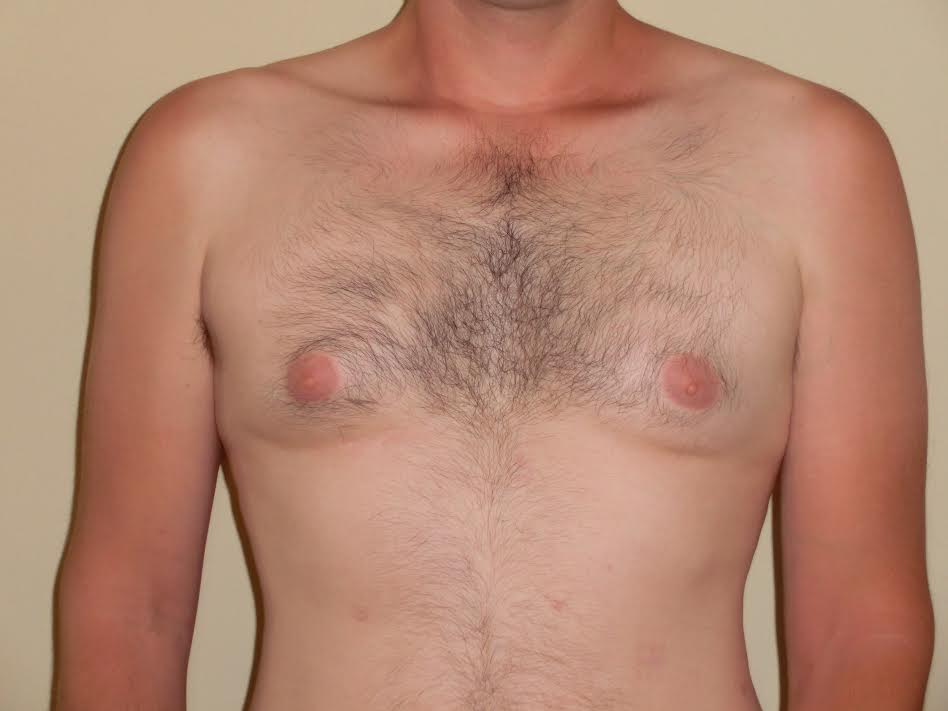 An example of What gynecomastia Looks Like in Men