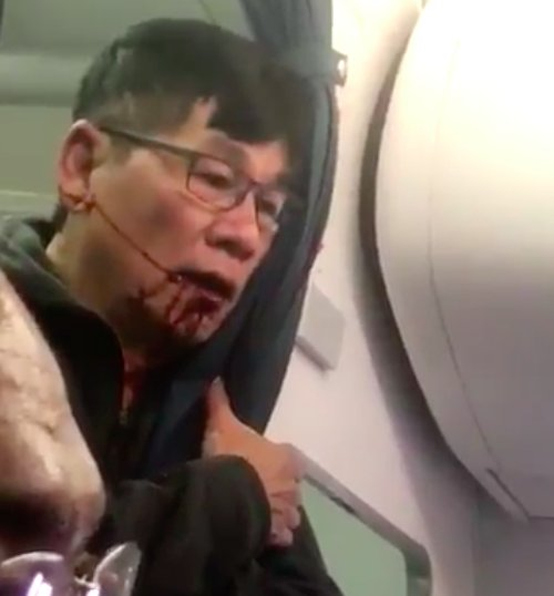 The unidentified passenger, bloodied, after being dragged off the United flight