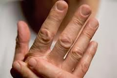 Essential Oils For Arthritis by Green Living Ladies