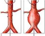 Ader normal Aneurisma