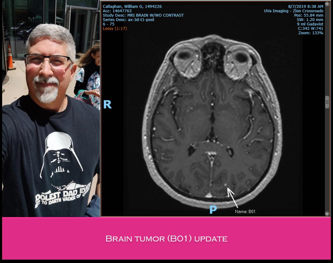 brain tumor update Aug 2019.png