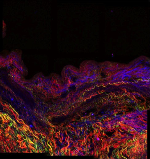 "A section of human airway from a patient with lymphangioleiomyomatosis (LAM). Second order harmonics were used to visualise fibrillar collagen. Organised (green) and disorganised (red) collagen and the autofluorescence/ multi-photon excitation fluorescence (blue) showing basic tissue structure. Collagen is present in the extracellular matrix (ECM) throughout the tissue acting as structural support and it has been acknowledged that the ECM is also a bioactive component that can contribute to disease pathology.                         Normal     0                     false     false     false         EN-AU     JA     TH                                                                                                                                                                                                                                                                                                                                                                                                                                                                                                                                                                                                                                                                                                             /* Style Definitions */ table.MsoNormalTable 	{mso-style-name:""Table Normal""; 	mso-tstyle-rowband-size:0; 	mso-tstyle-colband-size:0; 	mso-style-noshow:yes; 	mso-style-priority:99; 	mso-style-parent:""""; 	mso-padding-alt:0cm 5.4pt 0cm 5.4pt; 	mso-para-margin:0cm; 	mso-para-margin-bottom:.0001pt; 	mso-pagination:widow-orphan; 	font-size:12.0pt; 	font-family:Cambria; 	mso-ascii-font-family:Cambria; 	mso-ascii-theme-font:minor-latin; 	mso-hansi-font-family:Cambria; 	mso-hansi-theme-font:minor-latin; 	mso-ansi-language:EN-US;}"