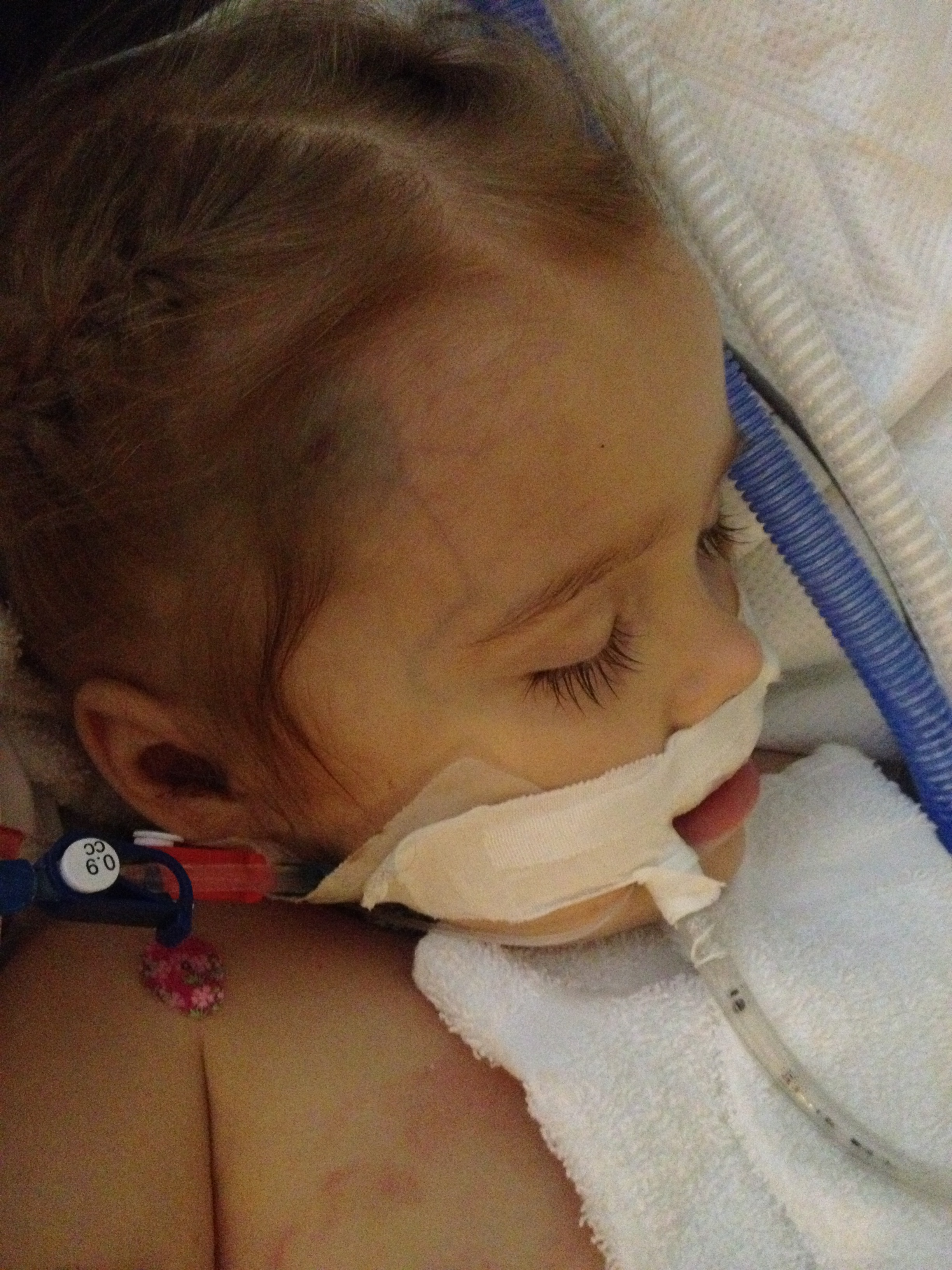 8/17/13 sweet baby Ainsley, receiving a dose of PEG, pegasparagenase a form of chemotherapy.