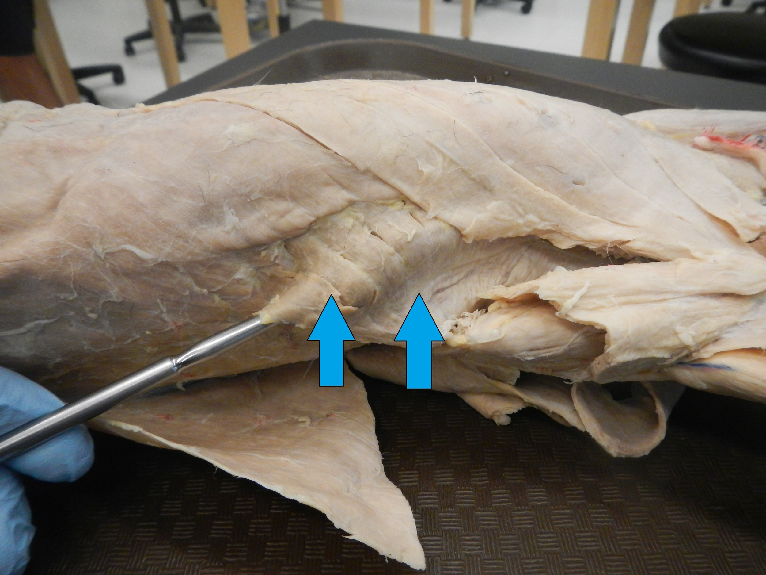 Serratus Anterior   O - Lateral surface of 8 upper ribs  I - Medial border and anterior surface of scapula  F - Abduction and superior rotation of scapula