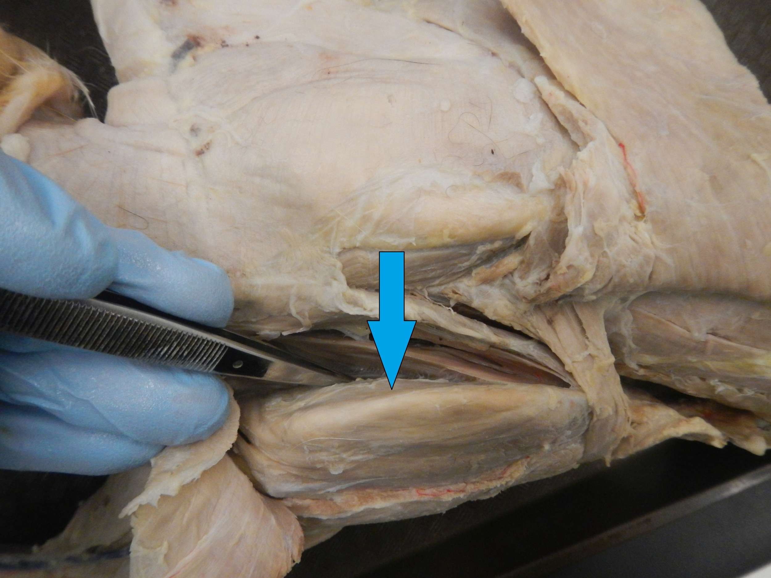 Subscapularis   O - Subscapular fossa of scapula  I - Lesser tubercle of humerus   F - Provides anterior strength to shoulder joint, adduction and medial rotation ofhumerus (internal rotation)