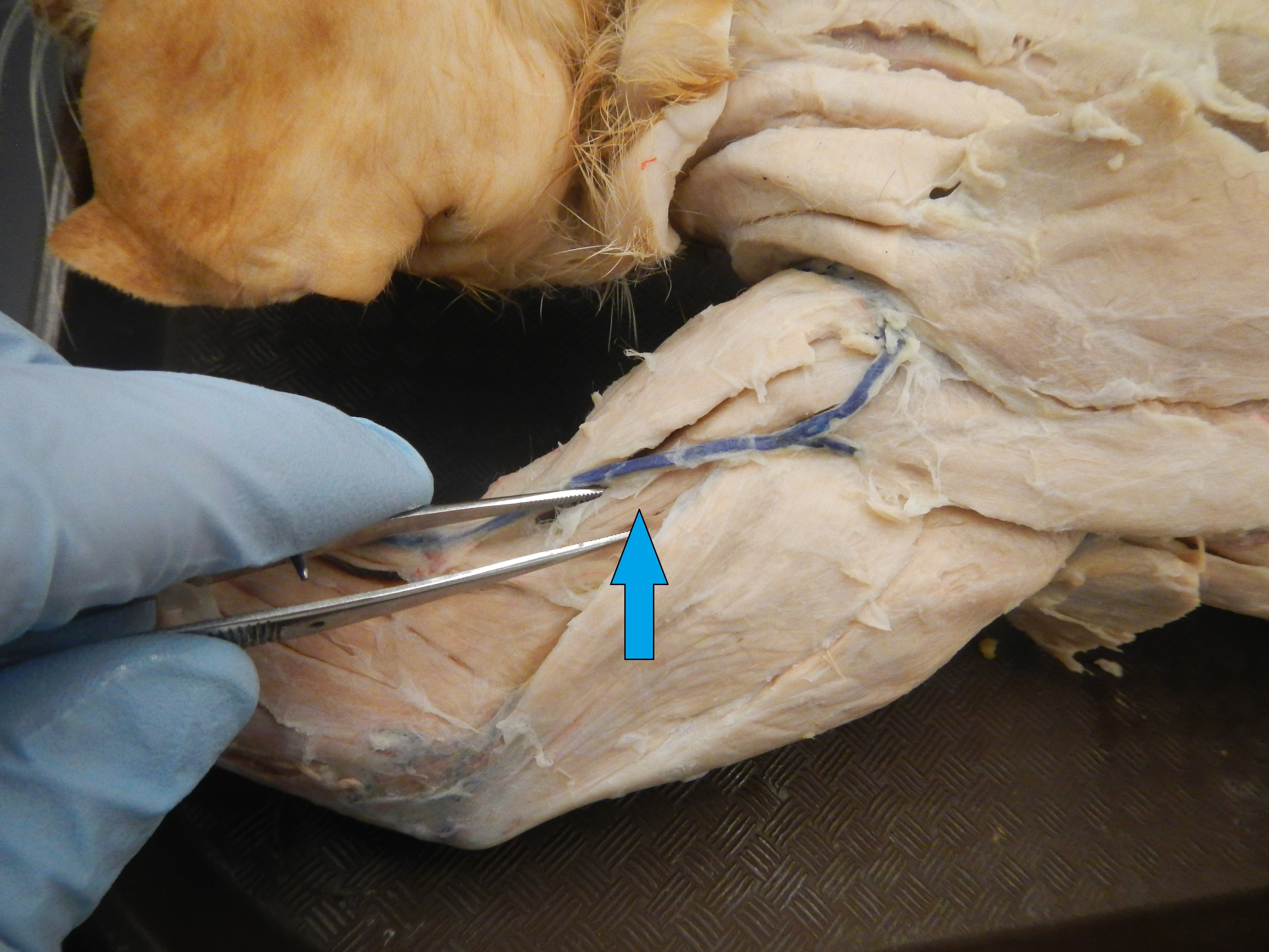 Brachialis   O - Anterior shaft of humerus  I - Coronoid process of ulna and ulnar tuberosity  F - Elbow flexion