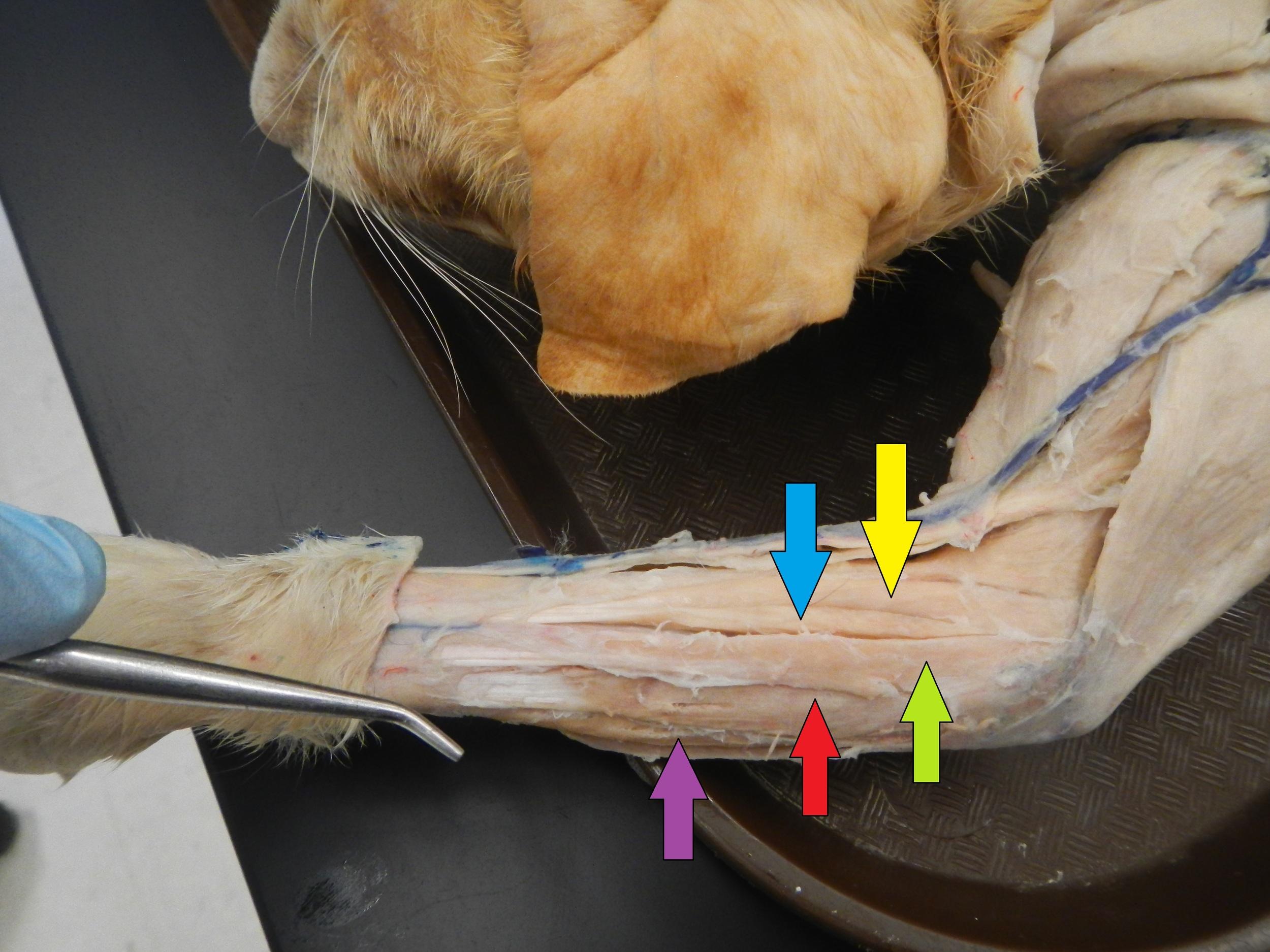 Forearm Extensors     Yellow: Extensor Carpi Radialis Longus    Blue: Extensor Carpi Radialis Brevis    Green: Extensor Digitorum    Red: Extensor Digitorum Lateralis     Purple: Extensor Carpi Ulnaris
