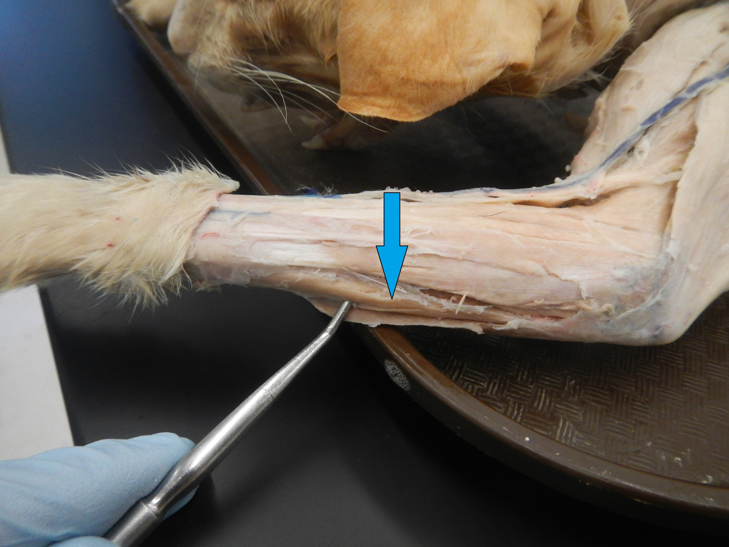 Extensor Carpi Ulnaris   O - Lateral epicondyle of humerus  I - Base of 5th metacarpal  F - Wrist extension and adduction