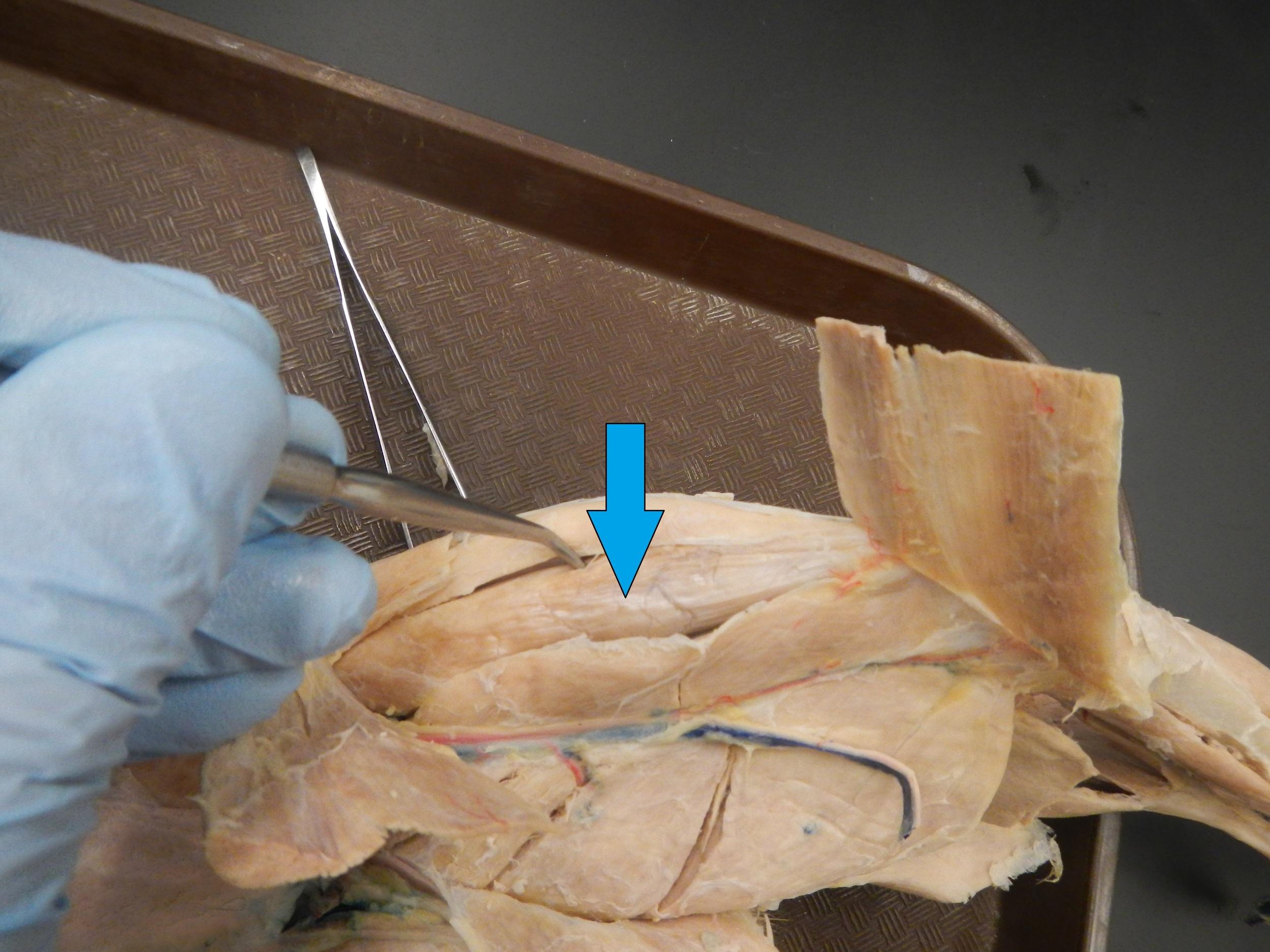 Rectus Femoris   O - Anterior inferior iliac spine  I - Patella via quadriceps tendon, then tibial tuberosity via patellar tendon  F - Flexion of hip and knee extension