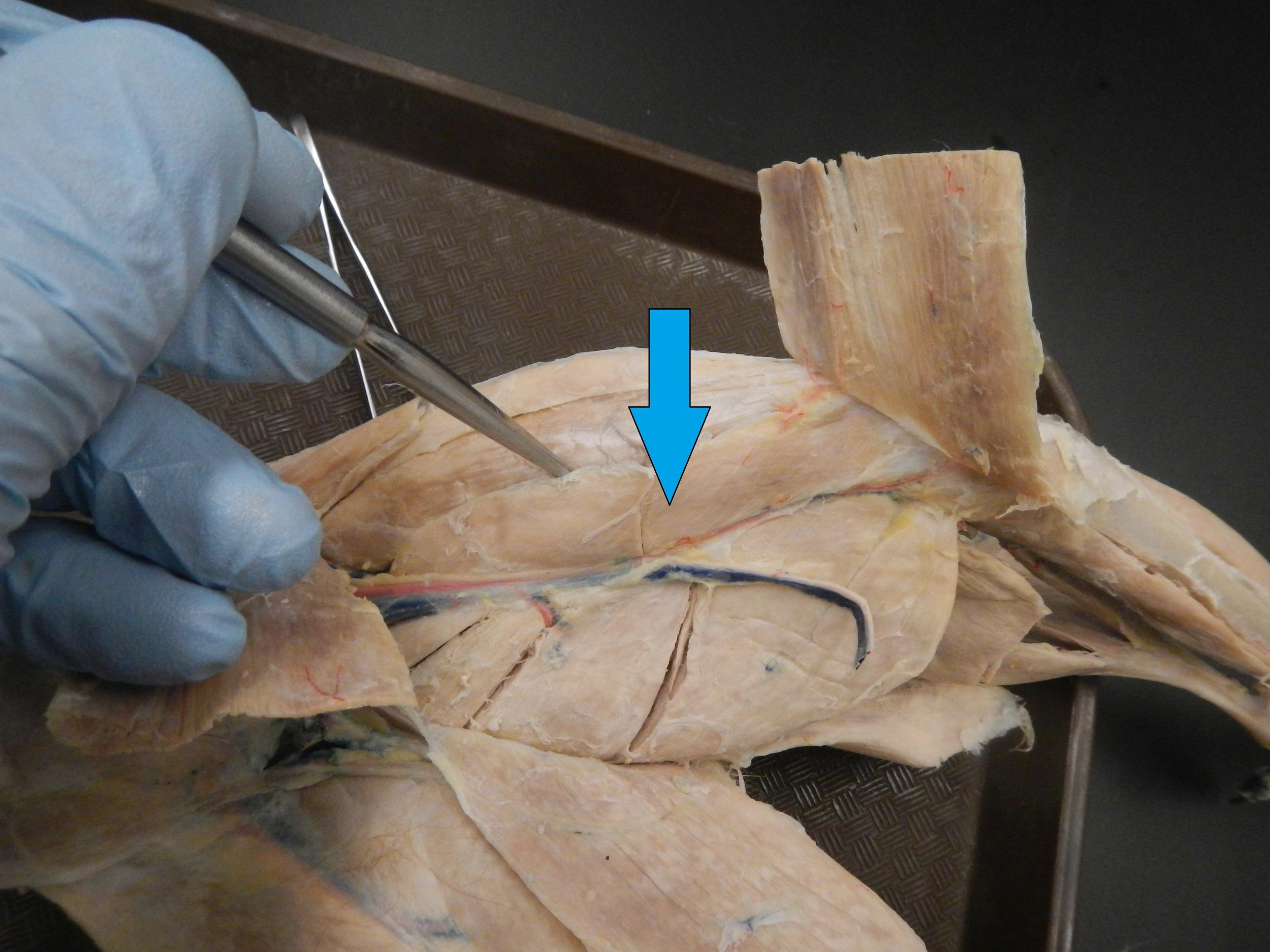 Vastus Medialis   O - Medial aspect of femur  I - Patella via quadriceps tendon, then tibial tuberosity via patellar tendon  F - Knee extension