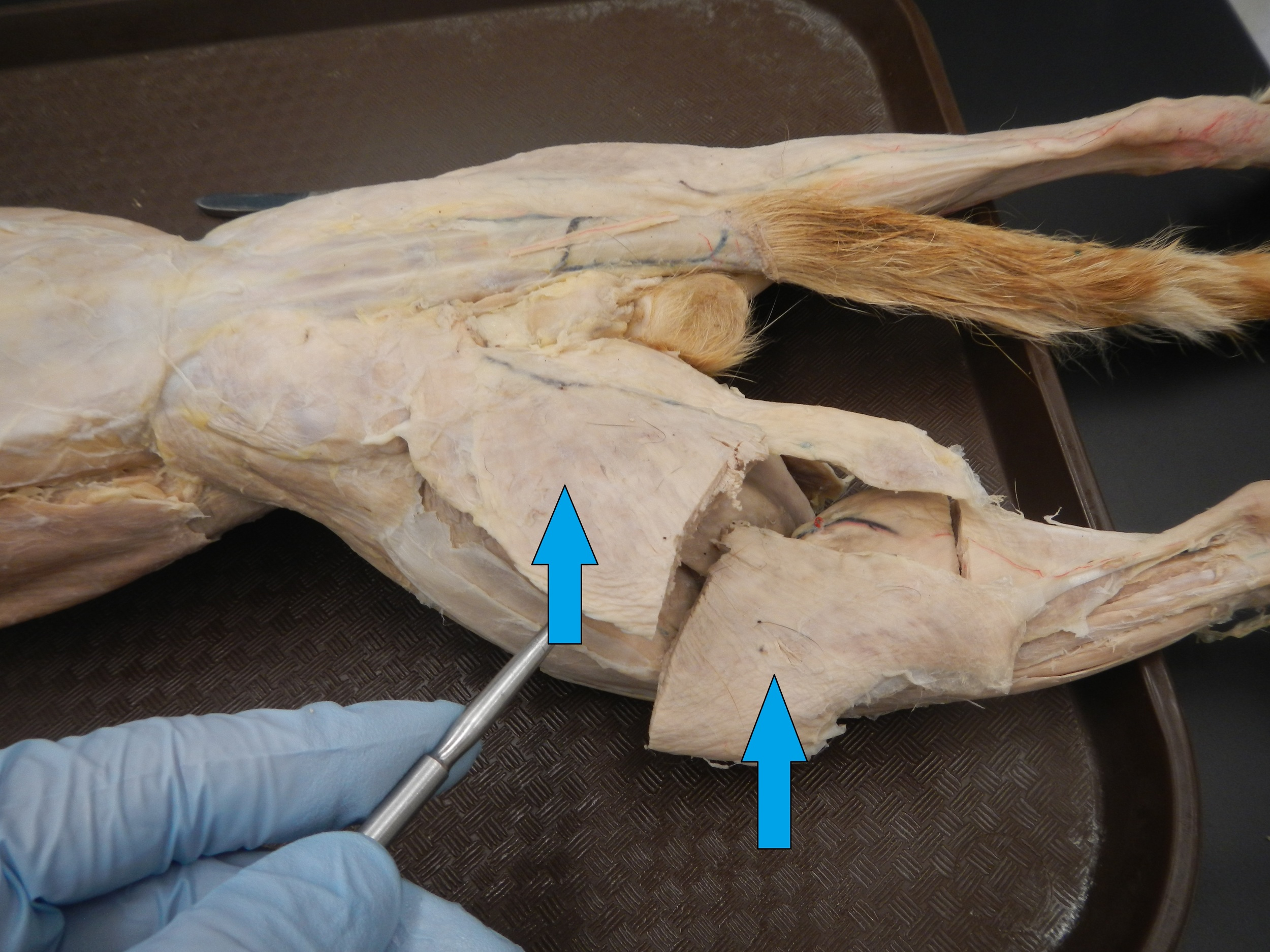 Biceps Femoris    O - Ischial tuberosity (Long Head), Posterior lateral side of femur (Short Head)  I - Head offibulaand lateral condyle oftibia   F - Long head extends hip and flexes knee, Short head flexes knee