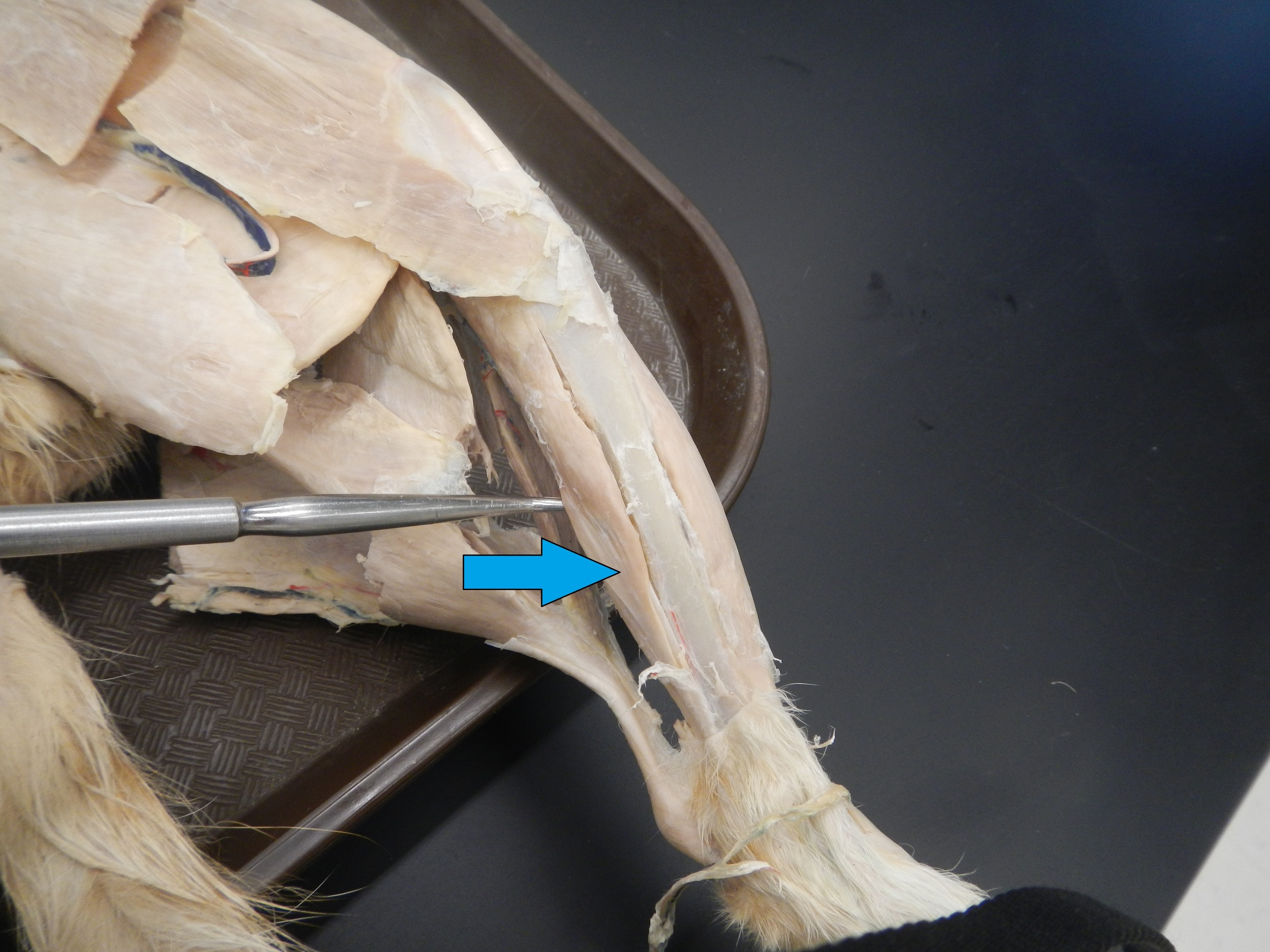 Flexor Digitorum Longus   O - Lateral condyle of tibia, anterior surface of fibula andinterosseous membrane   I - Middle and distal phalanges of lateral 4 digits  F - Ankle plantar flexion and toe flexion