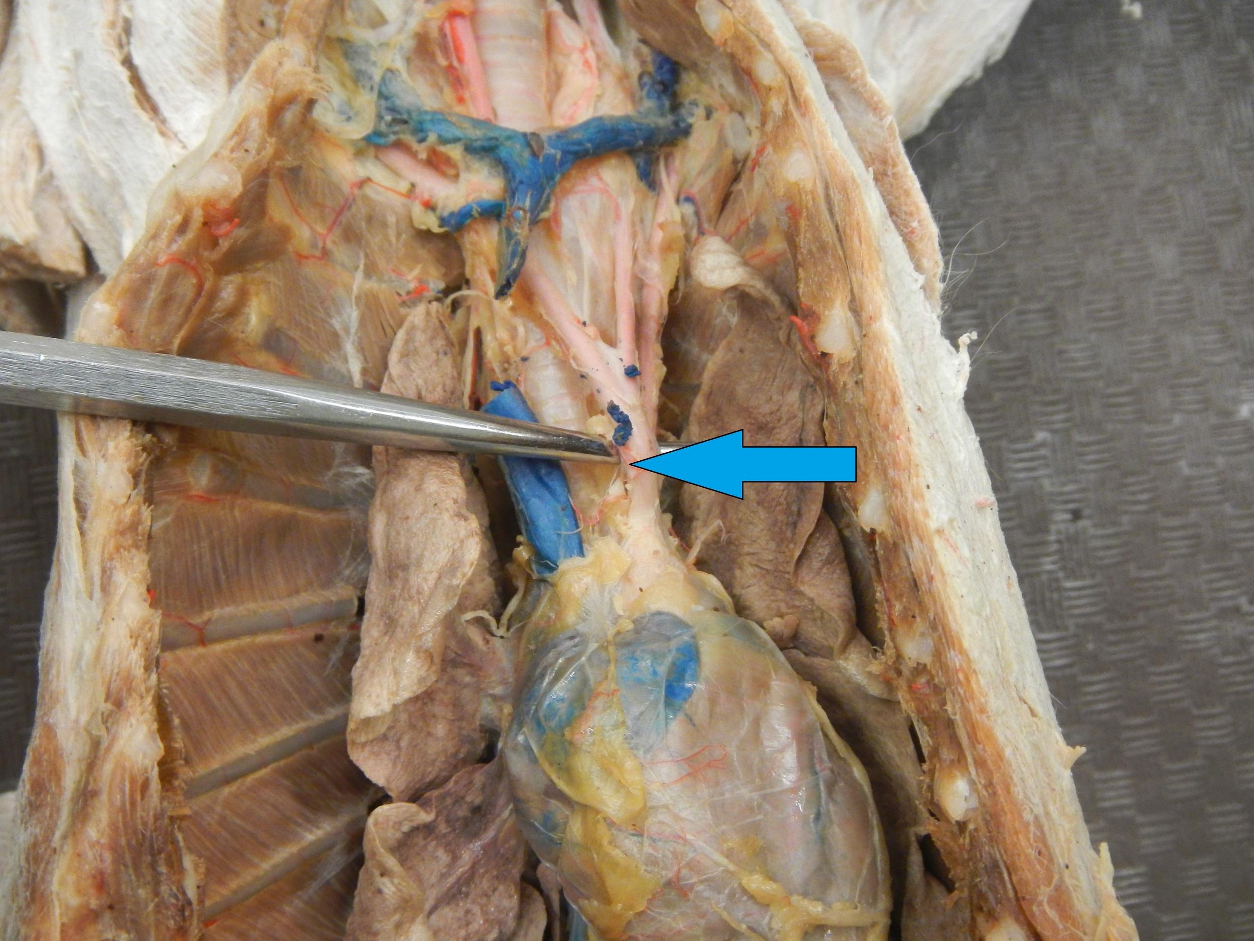 Blue - Brachiocephalic Artery