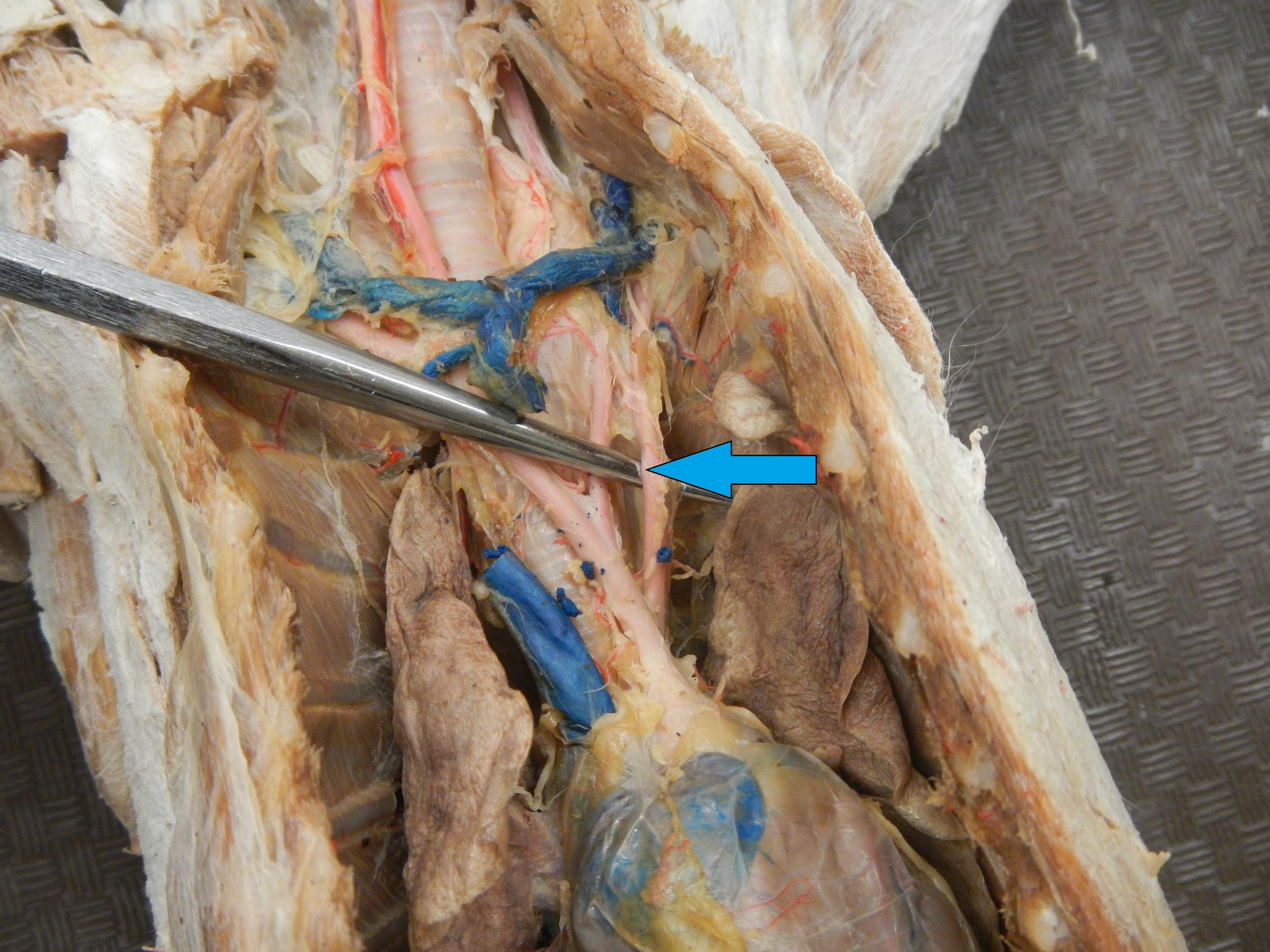 Blue - Left Subclavian Artery