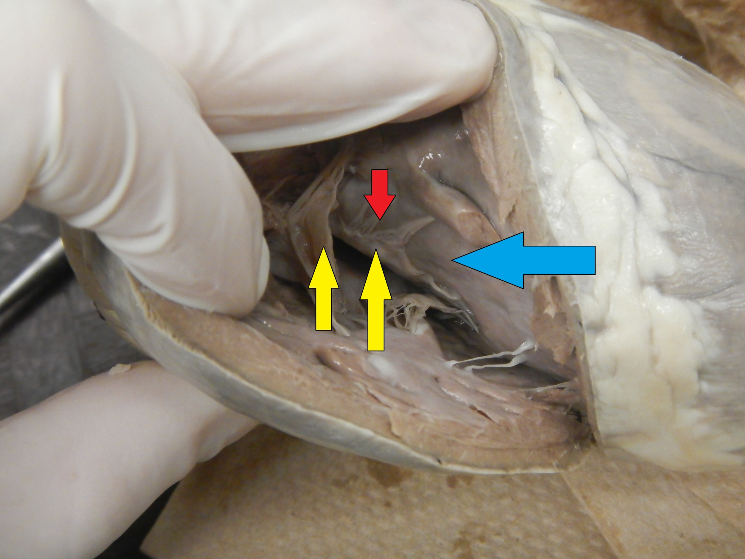 Blue - Right Ventricle  Red - Chordae Tendineae  Yellow - Atrioventricular Valve - Tricuspid (Will not be tested on)