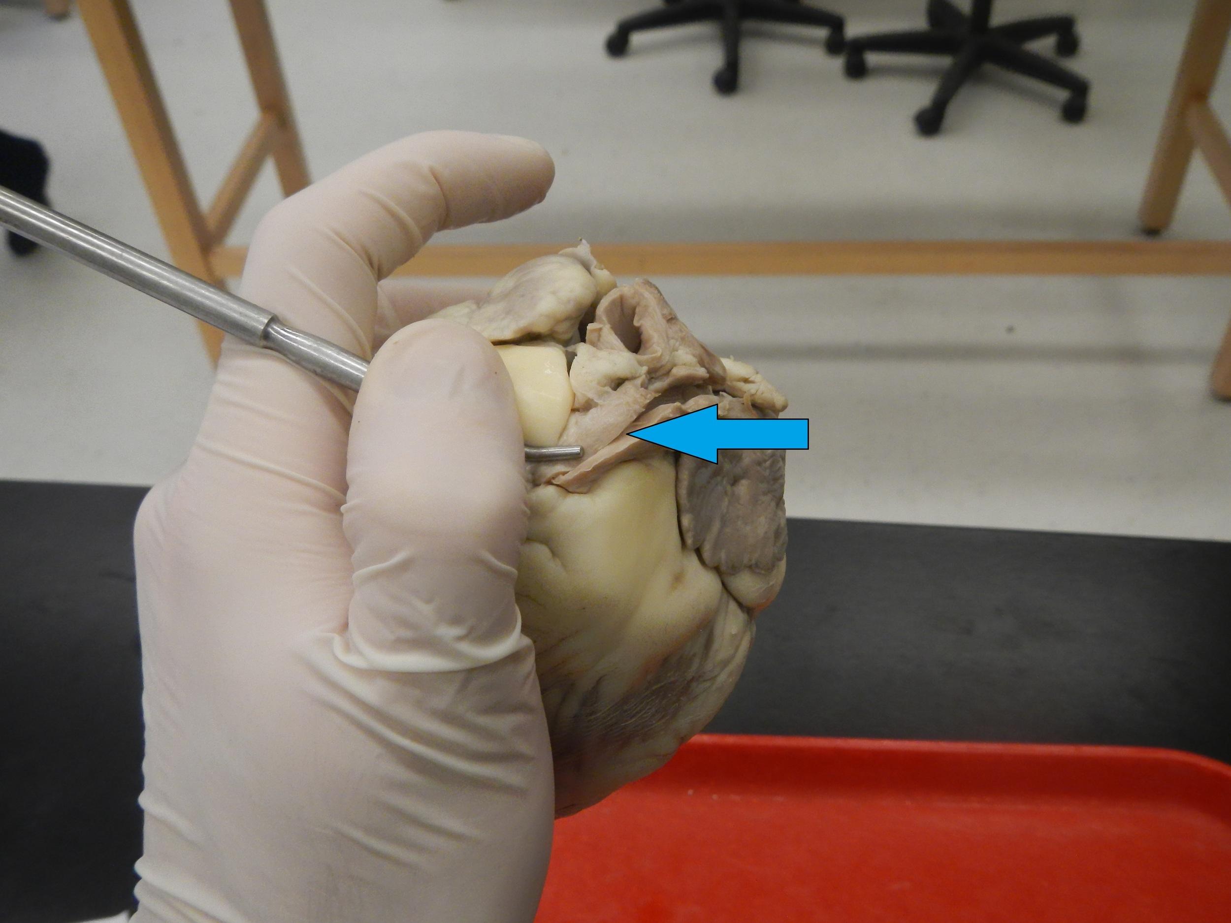 Blue - Pulmonary Artery