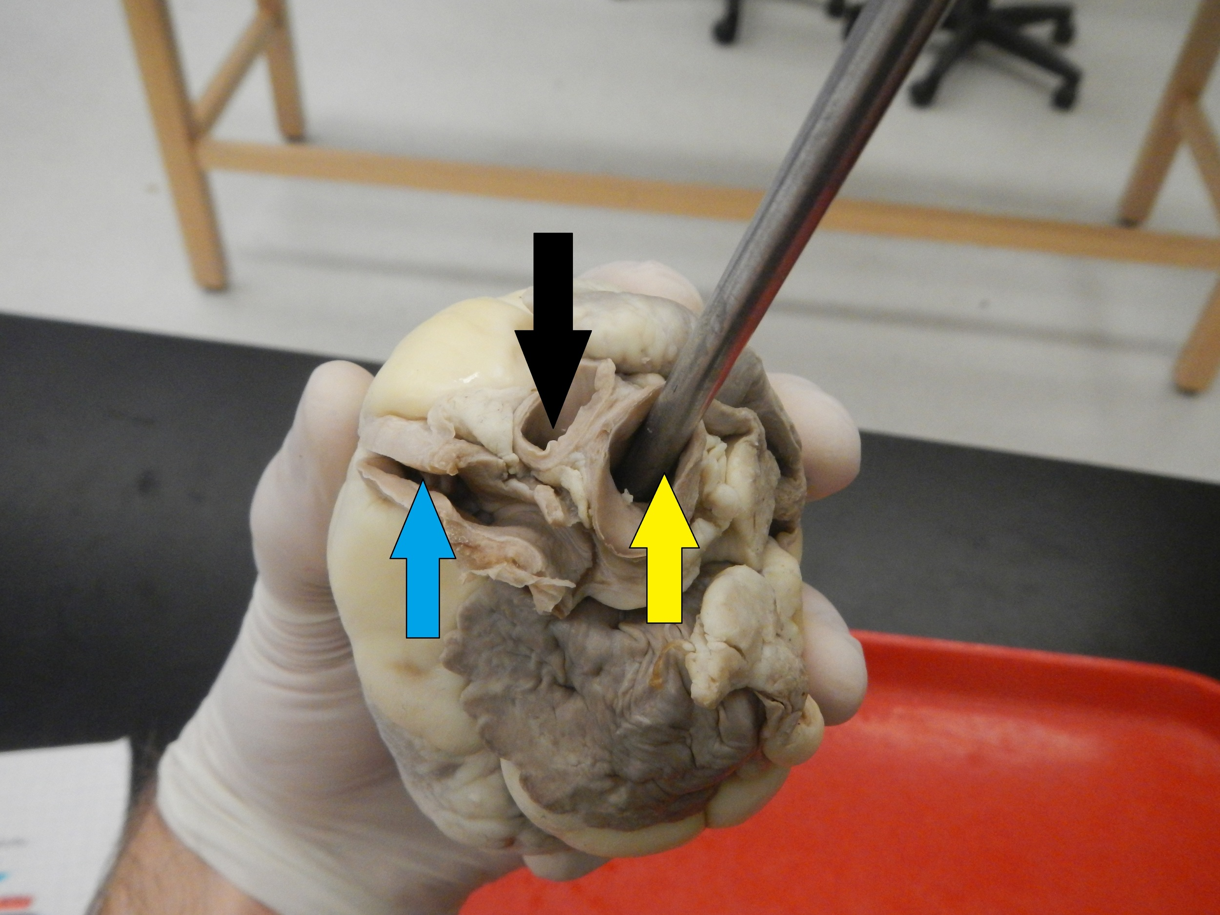Blue - Pulmonary Artery  Yellow - Aorta  Black - Brachiocephalic Artery (Will not be tested on)