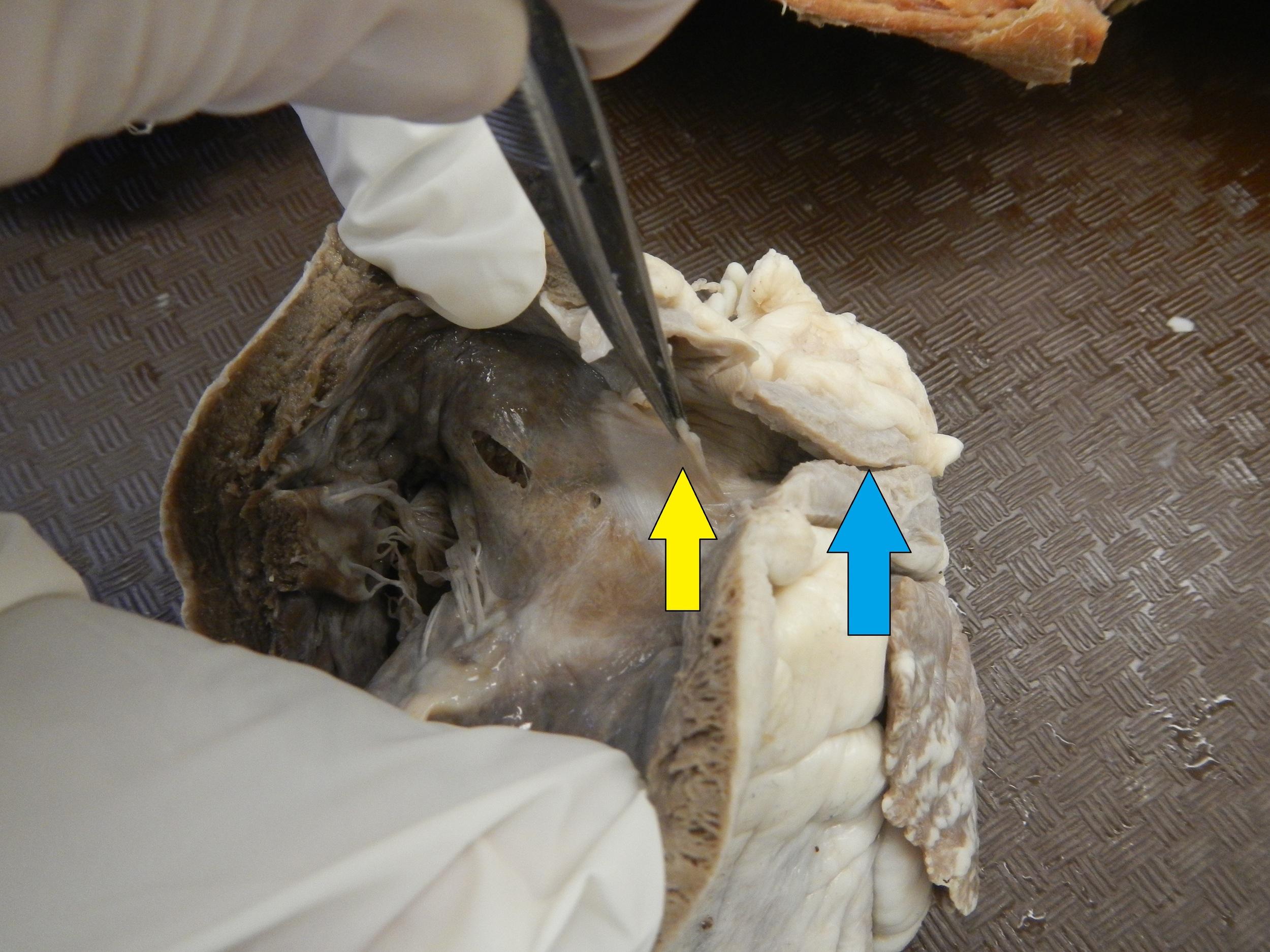 Blue - Pulmonary Artery  Yellow - Pulmonary Semilunar Valve