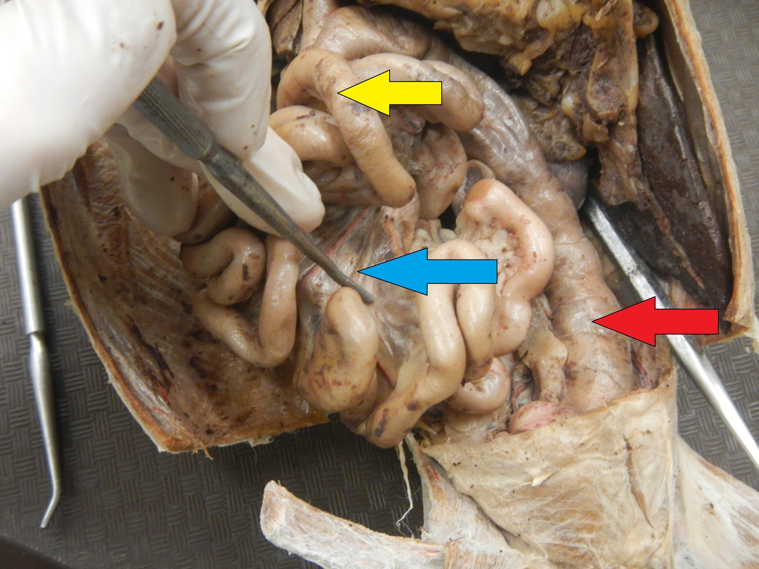 Yellow - Small Intestine  Blue - Mesentery (Small Intestine's)  Red - Large Intestine