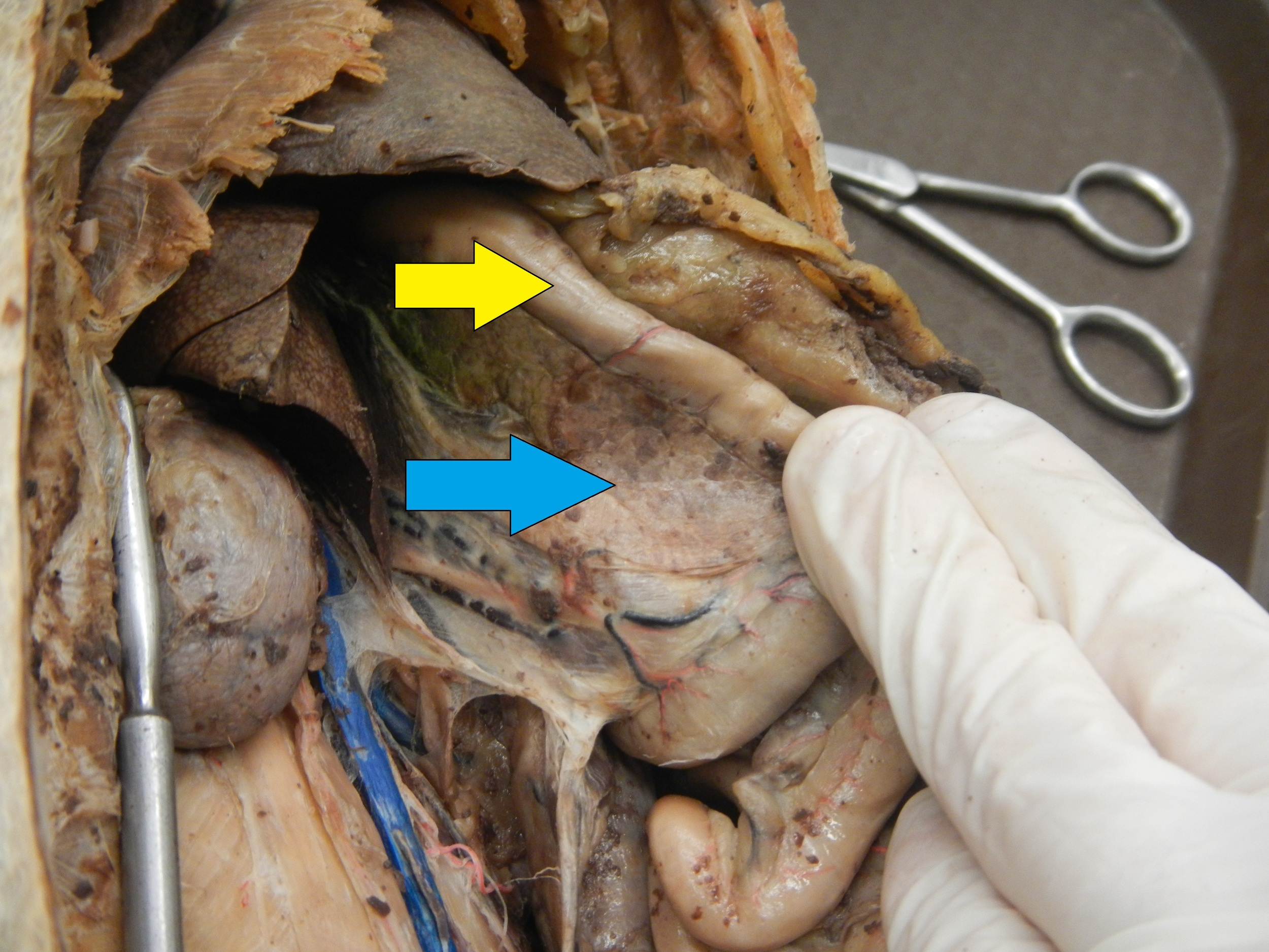 Blue - Pancreas  Yellow - Small Intestine