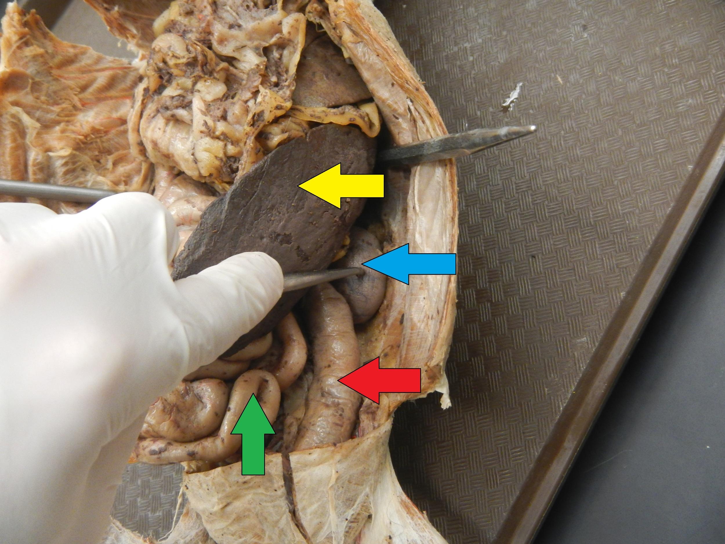 Yellow - Spleen  Blue - Left Kidney  Red - Large Intestine  Green - Small Intestine