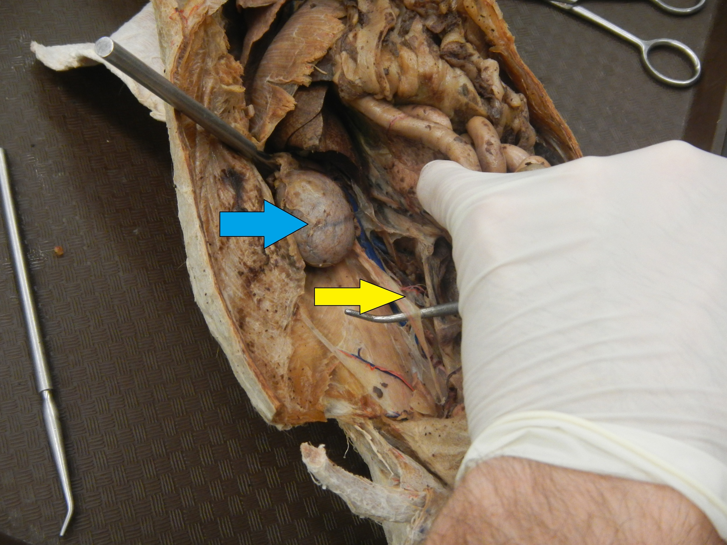 Blue - Right Kidney  Yellow - Ureter