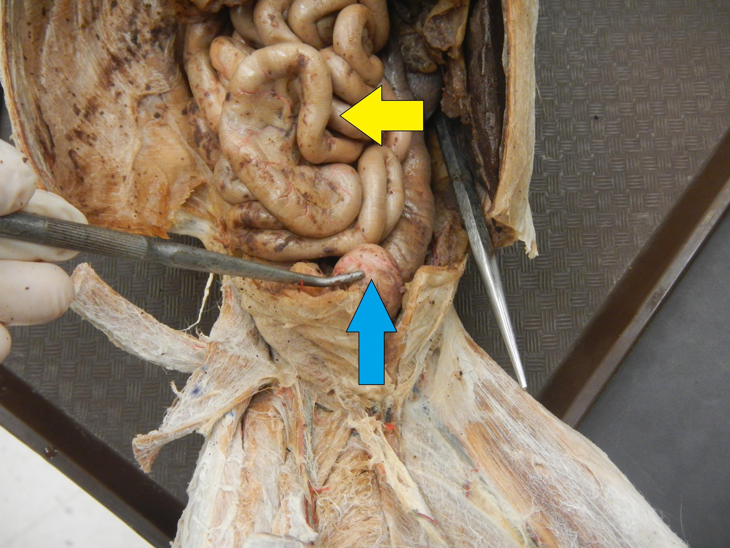 Blue - Urinary Bladder  Yellow - Small Intestine