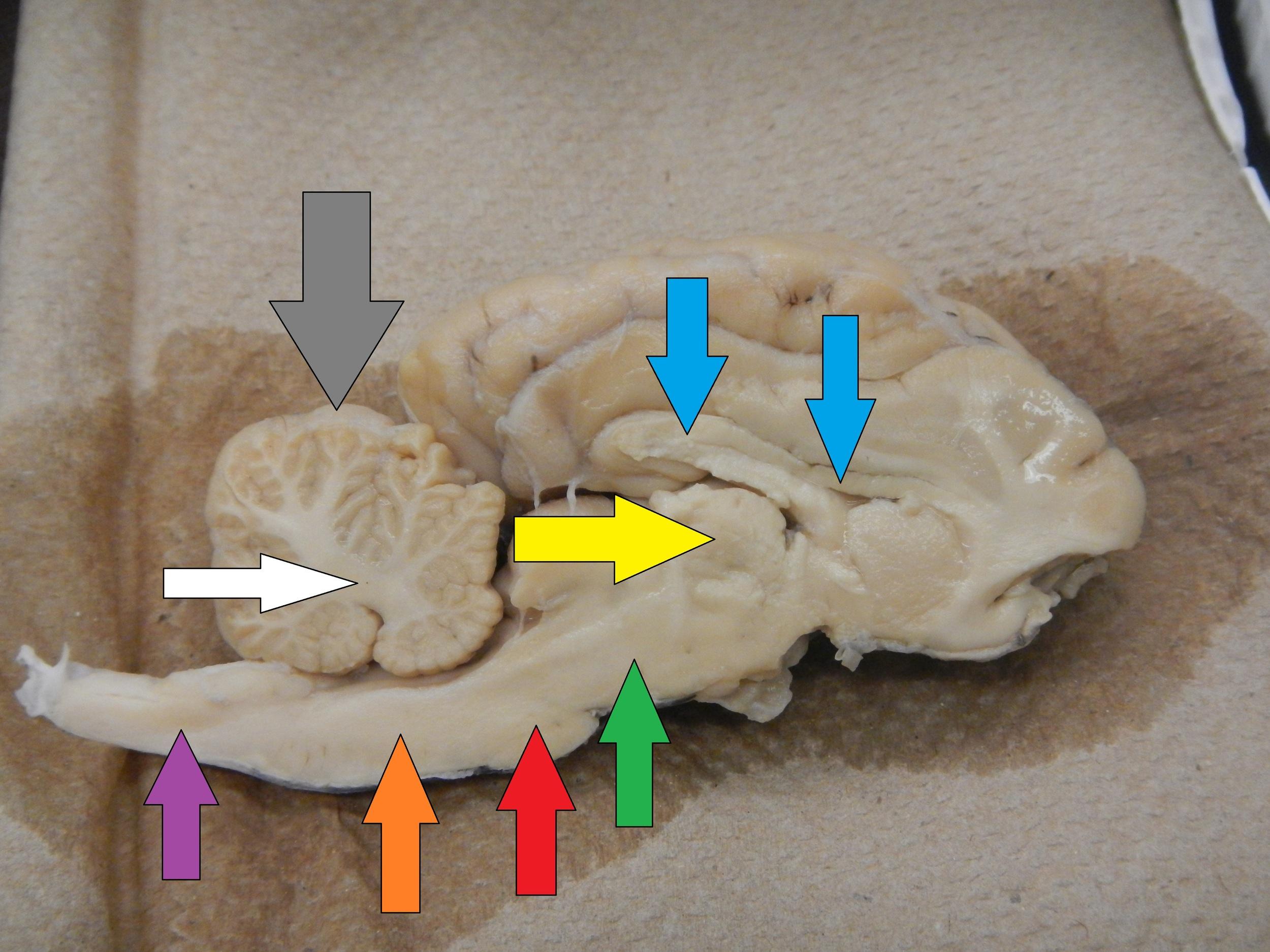 Blue - Corpus Callosum  Yellow - Thalamus  Green - Midbrain  Red - Pons  Orange -Medulla  Purple - Spinal Cord  Grey - Cerebellum  White - Arbor Vitae