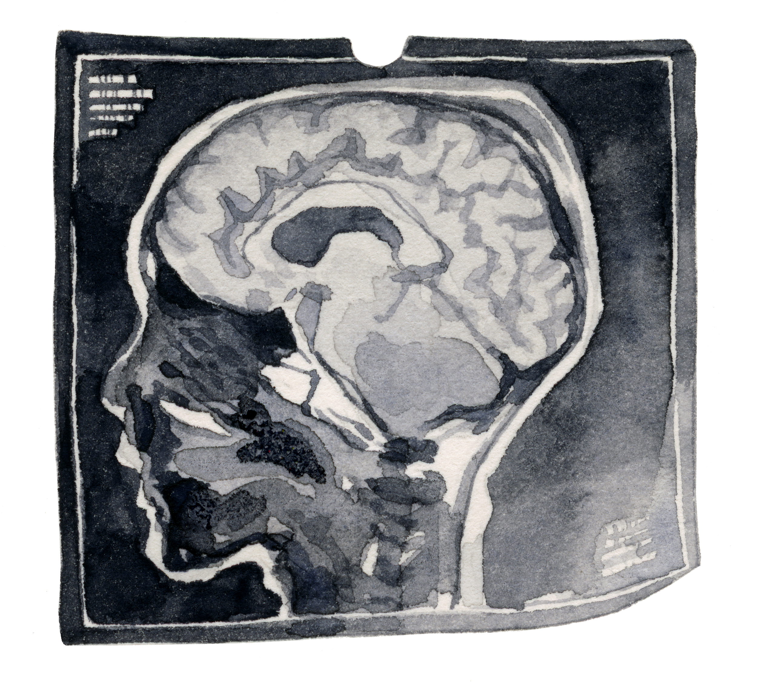 6 MRI-web.jpg