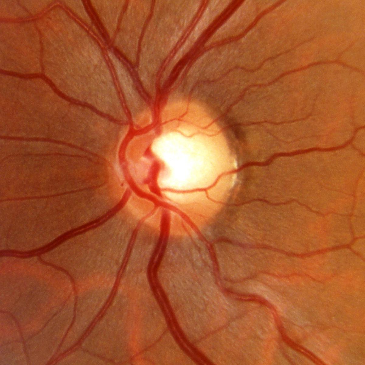 glaucoma austin