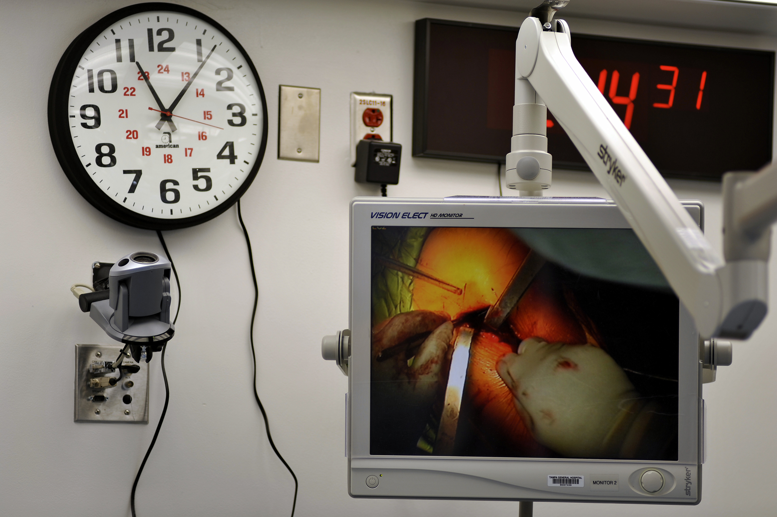 Progress of the surgery can be seen on one of several monitors in the OR.