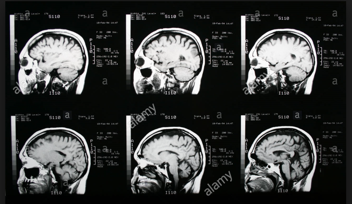 MRI image.