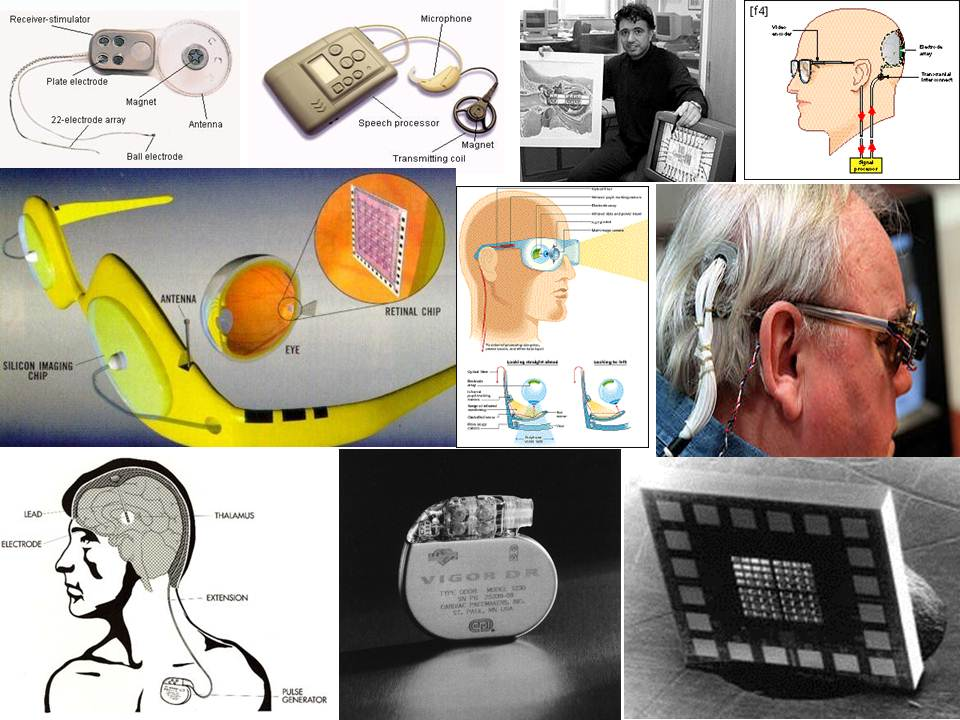 Exhibit 8.10           Various Medical Implant Applications