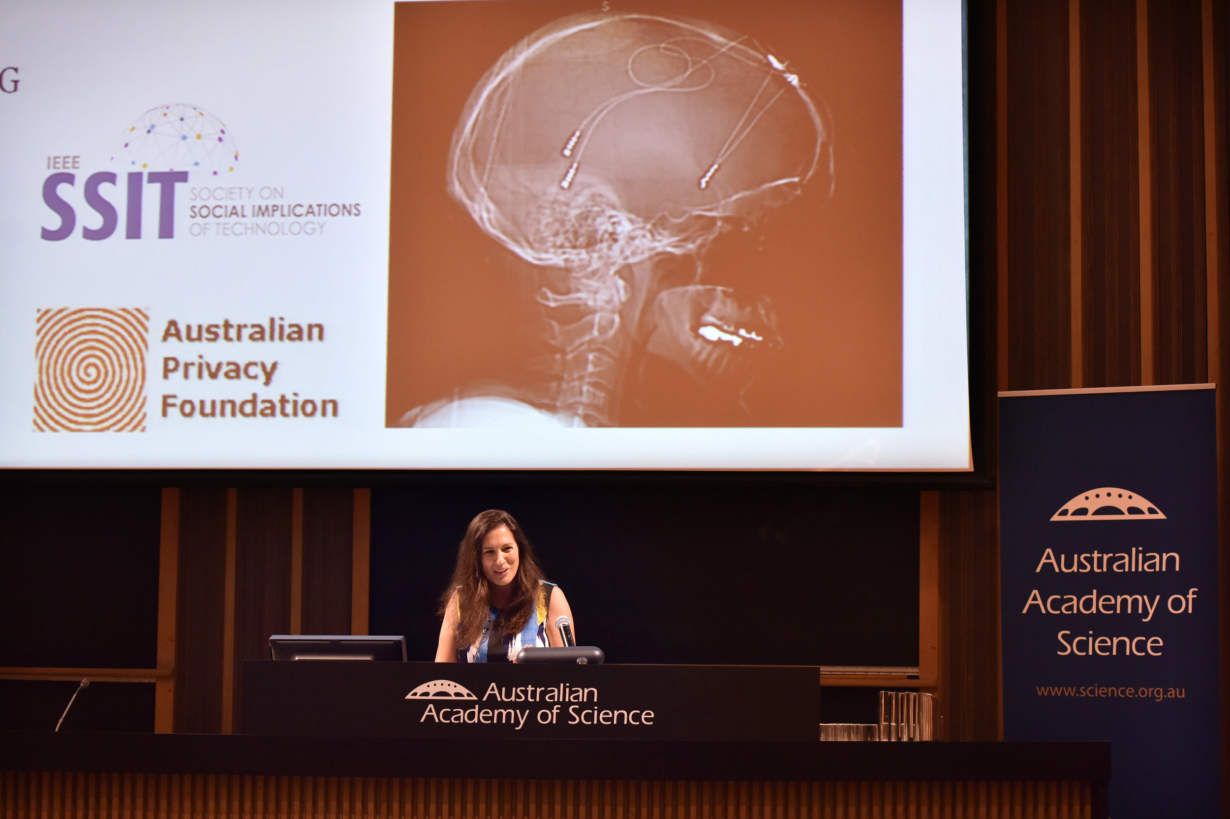 Science at the Shine Dome, Bionics of the future presentations, Canberra on 26th May, 2016. PHOTO MARK GRAHAM